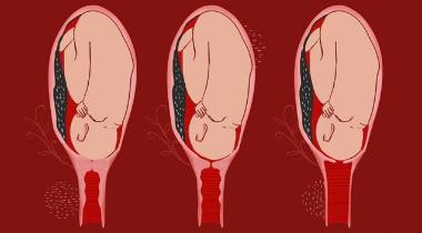 Colo do útero: Saiba como ele fica preparado para o parto
